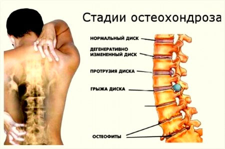 Остеохондроз шейный и последствие и лечения