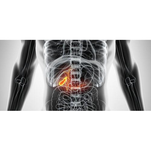 Желчнокаменная болезнь: вечная диета или лечение – что вы выбираете?